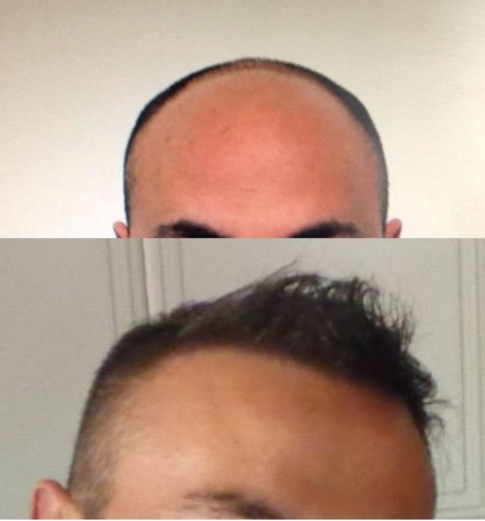 31 Years Old.  Reconstruction of hairline, forelock, midscalp and crown area.  7000 Follicular Units transplanted.  No finasteride.