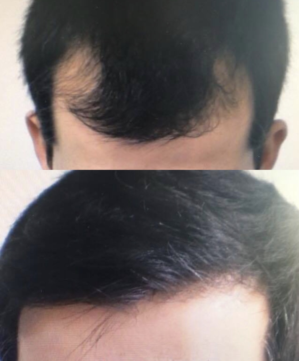 30 Years Old  Reconstruction of frontal-temporal recession.  1200 Follicular Units transplanted.  No finasteride.