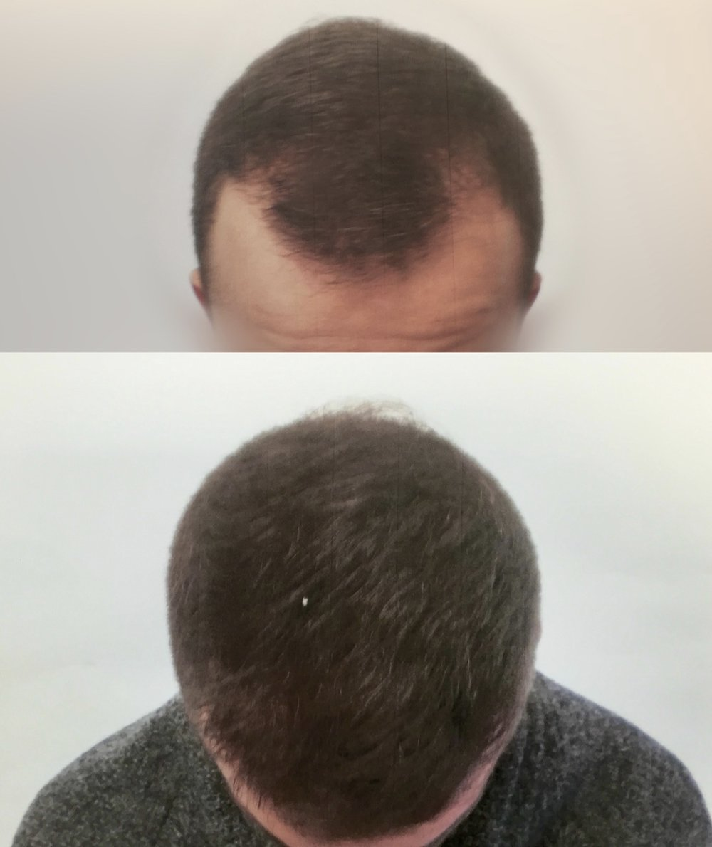 25 Years Old.  Reconstruction of the hairline and frontal-temporal recession.  2400 Follicular Units.  No finasteride.
