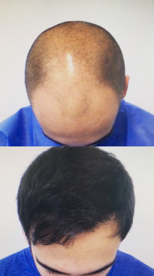 29 Yeas Old.  Reconstruction of hairline and frontal third. Mild filling of midscalp.  3000 Follicular Units transplanted.  No finasteride.