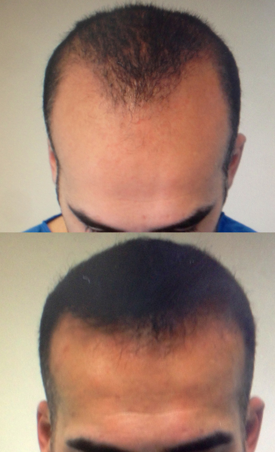 35 Years Old.  Hairline and frontal third densification.  1200 Follicular Units transplanted.  No finasteride.