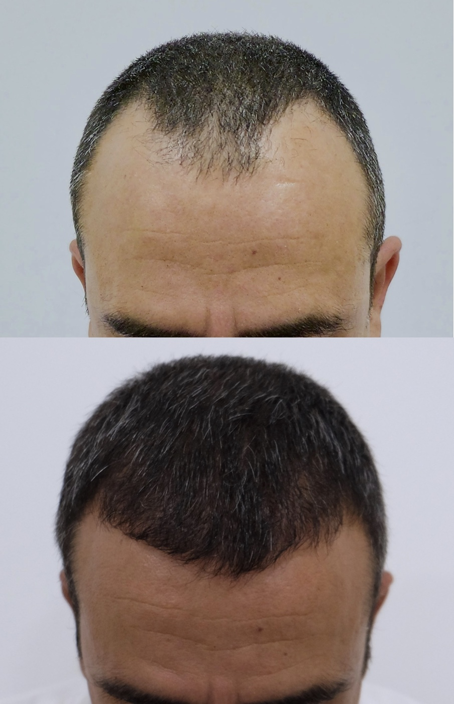 46 years old.  Reconstruction of hairline and frontal third.  3000 Follicular Units transplanted.  NOTE: 5 months evolution.   NOT FINAL RESULT
