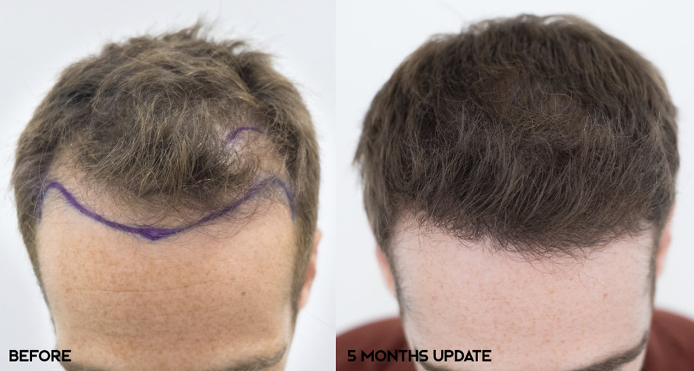 5 months post-op.  Norwood 3a.  Hairline and frontal third reconstruction. 2600 grafts transplanted.