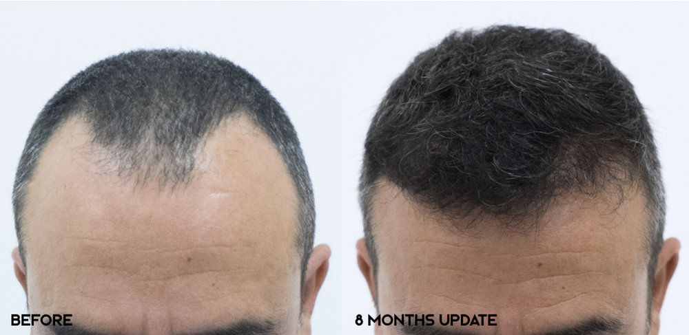 8 months post-op.  Norwood 3v.  Hairline, frontal third and crown reconstruction. 3000 grafts transplanted.