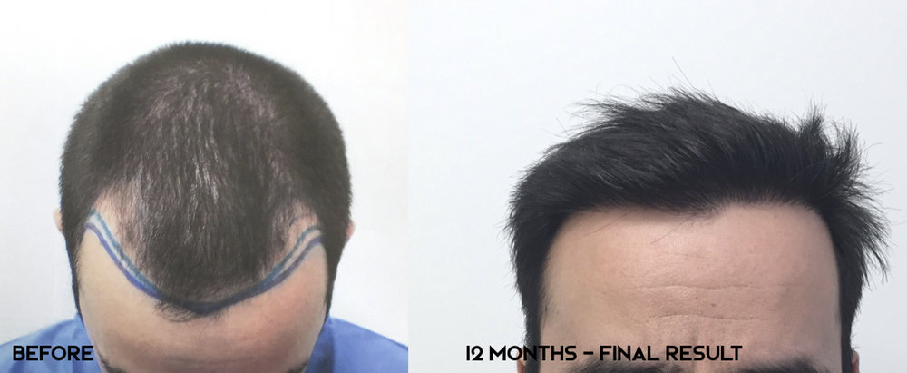 12 months post-op.  Norwood 3.  Frontal-temporal recession and hairline reconstruction. 2400 grafts transplanted.