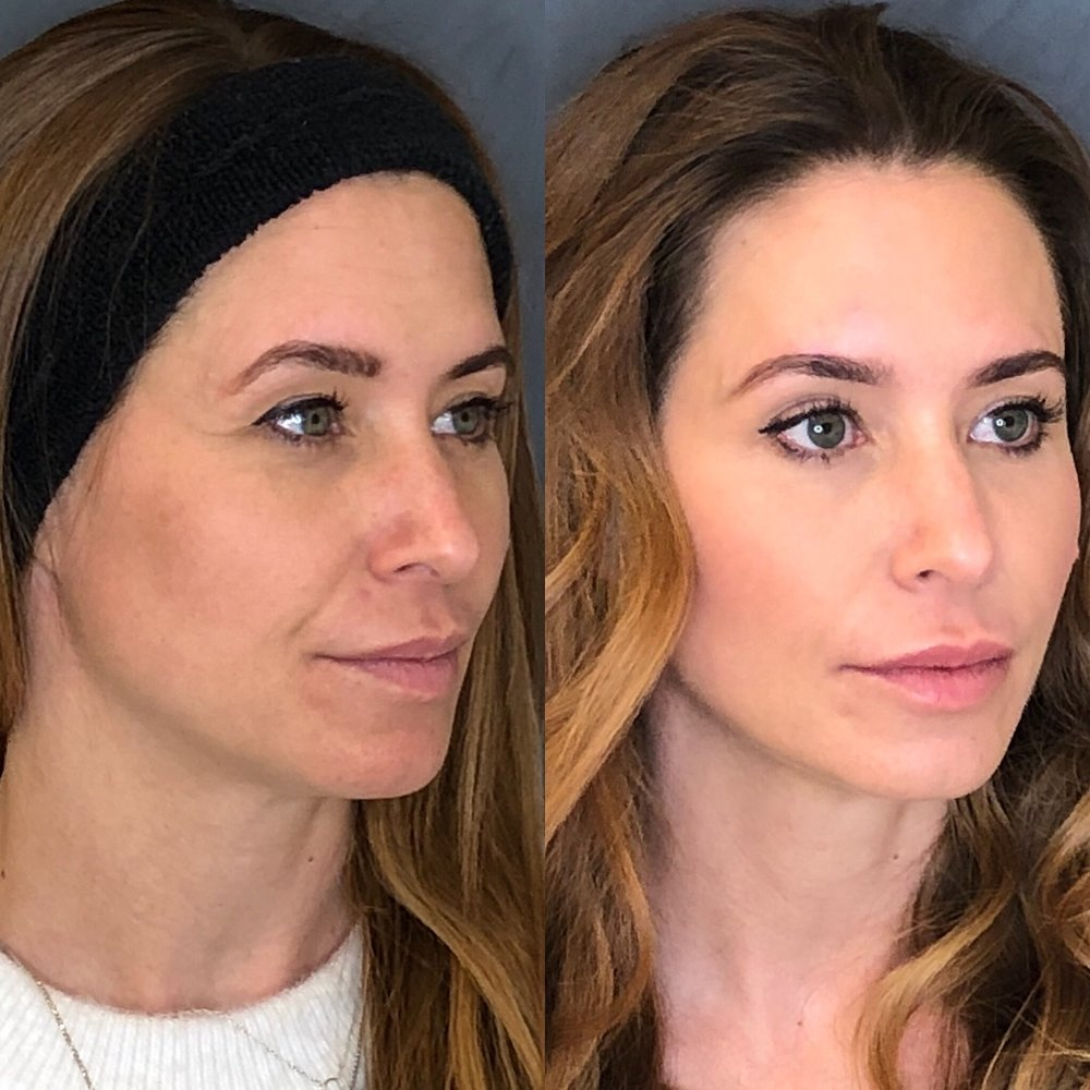 Before and After Belotero Filler to temples, forehead, and sides of face. A small amount of filler was injected to outline lips for improved definition.