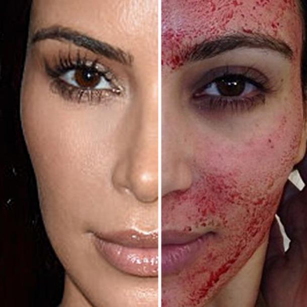 kim-k-vampire-facial-sq.jpg