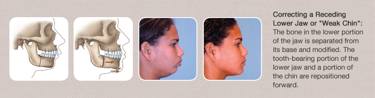 What are the risks associated with orthognathic surgery
