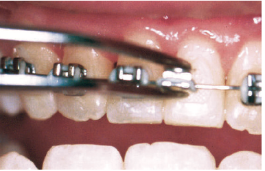 The wires and bands on your braces may come loose. If this happens