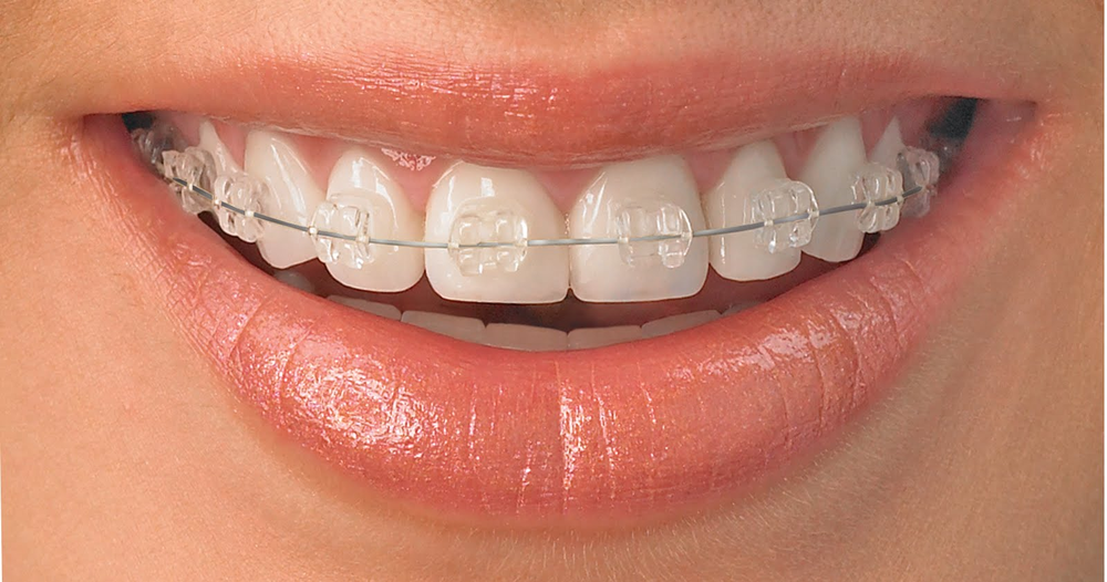 Ceramic braces offer the effectiveness of metal braces with the benefit of being less visible
