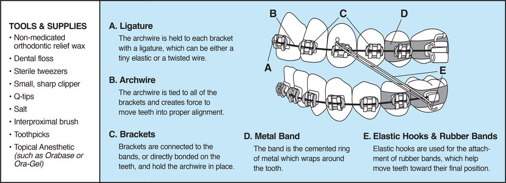 True orthodontic emergencies are uncommon, but when they do occur we are available to you