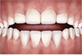 Open bites happen when a patient puts strain on the alignment of their teeth