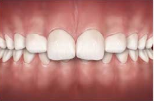 An over bite is a dental condition where the top teeth overlap the bottom teeth