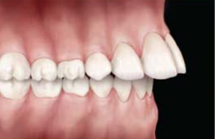 Overjet is a condition where the top incisors are ahead of the bottom incisors, or vice versa