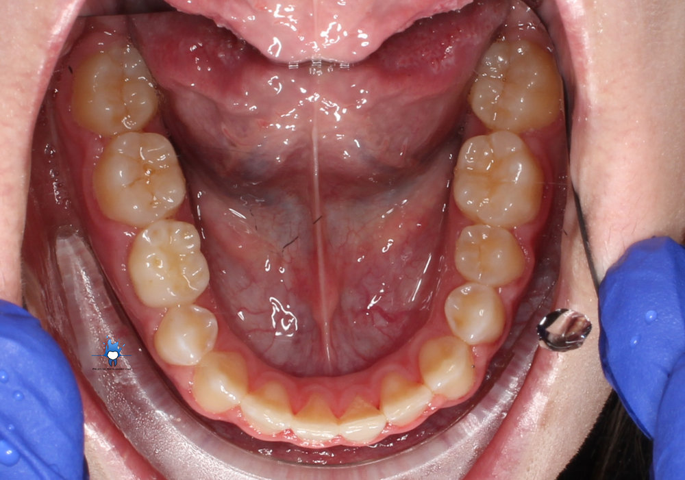 occlusal lower.jpg