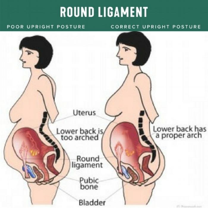 Round Ligament.jpg