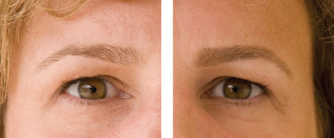 Brow makeup before and after: Sophia
