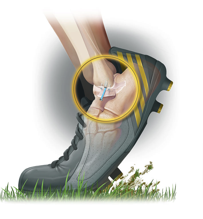 Ankle Bostrum Ligament Repair -