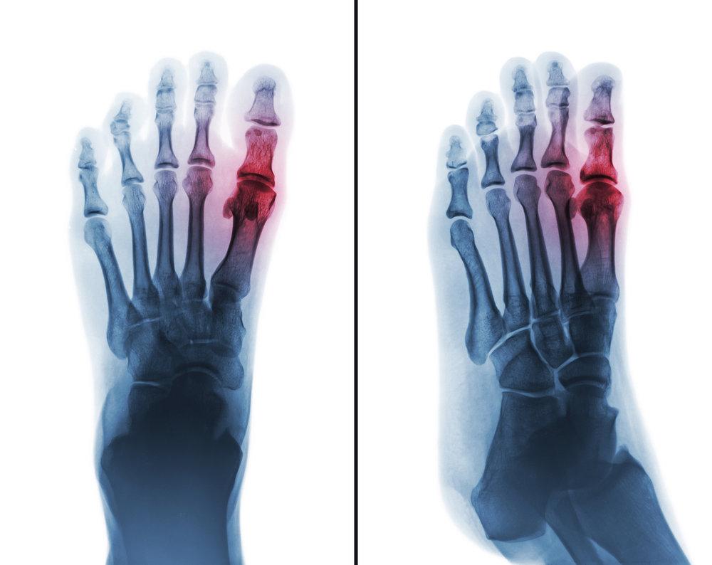 Foot Arthritis -