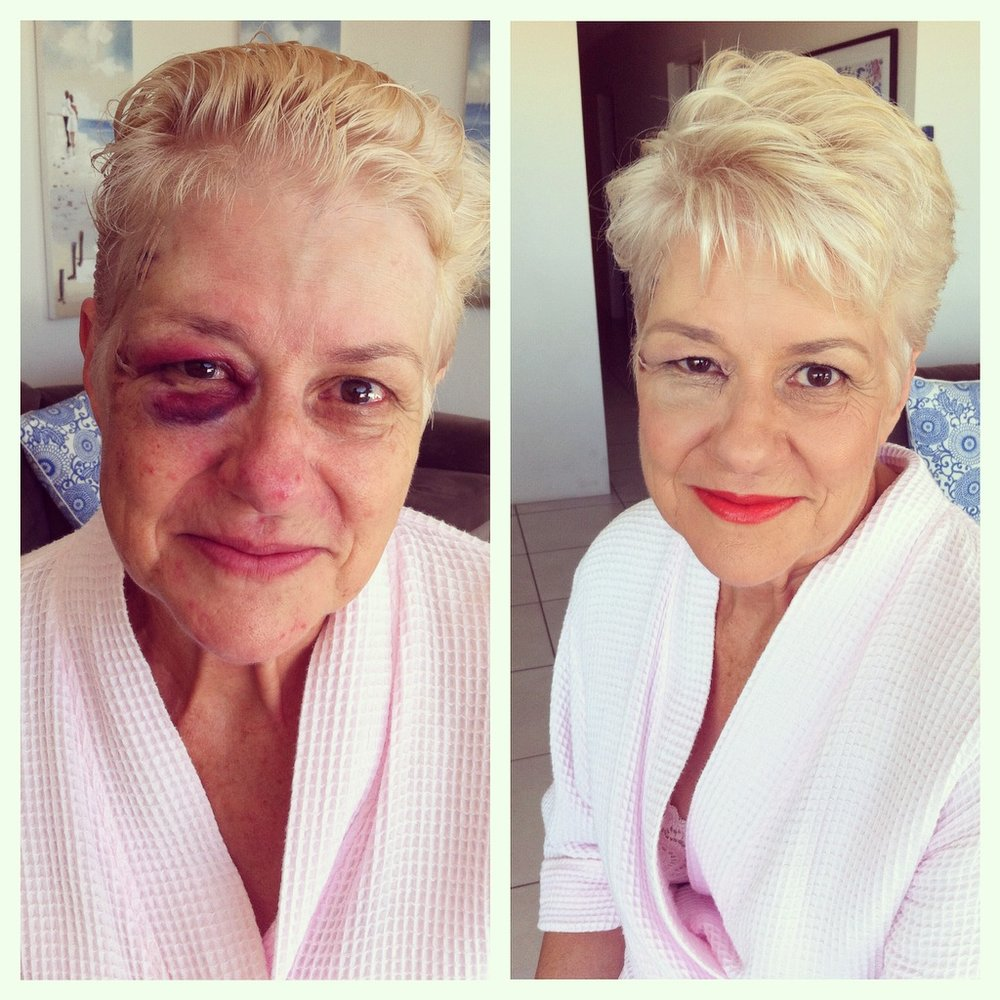 Poor mum had a fall the day before the wedding and ended up in hospital having scans. Needless to say makeup saved the day here - she felt so much better and although the swelling is still there she looks amazing!