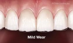 mild-tooth-wear.jpg