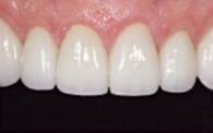 mild-tooth-wear-after.jpg