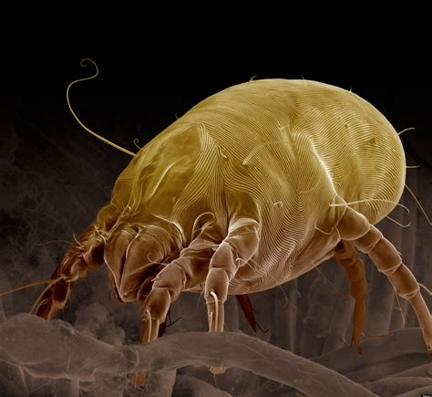 7 Highly Effective Ways to Get Rid of Dust Mites - Dust mites, their body parts and their feces are the most common household allergens. They are the source of sneezing, wheezing, coughing, itchy and watery eyes, runny noses, stuffy noses, eczema and asthma.If you are reading this, chances are you or someone you love was recently diagnosed with an allergy to dust mites. People that are recently diagnosed may experience a wide variety of feelings. Some are in denial, (How can a bug make you sick? But I keep a clean house!) some are overwhelmed but the vast majority are mad at the dust mites and are ready to declare war.