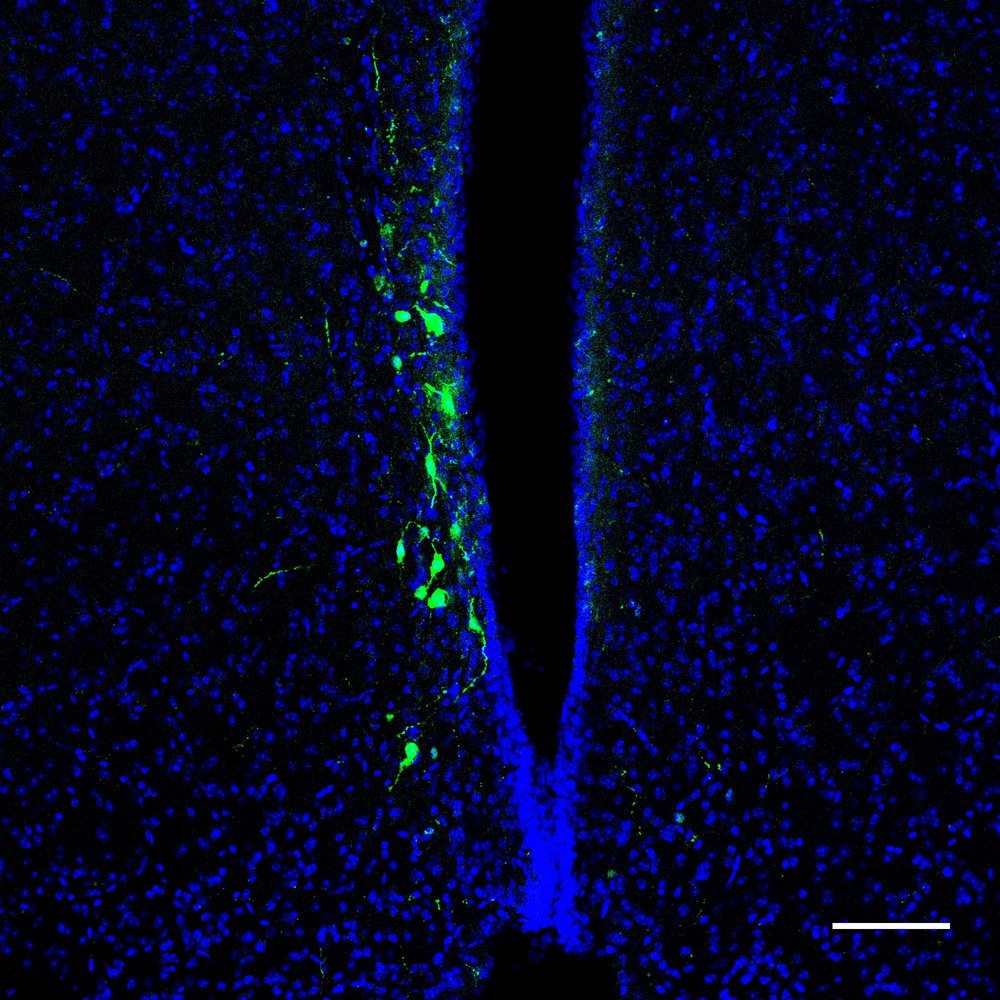 Circuit tracing using rAAV2-retro GFP identifies neurons projecting to sleep/wake regulatory regions