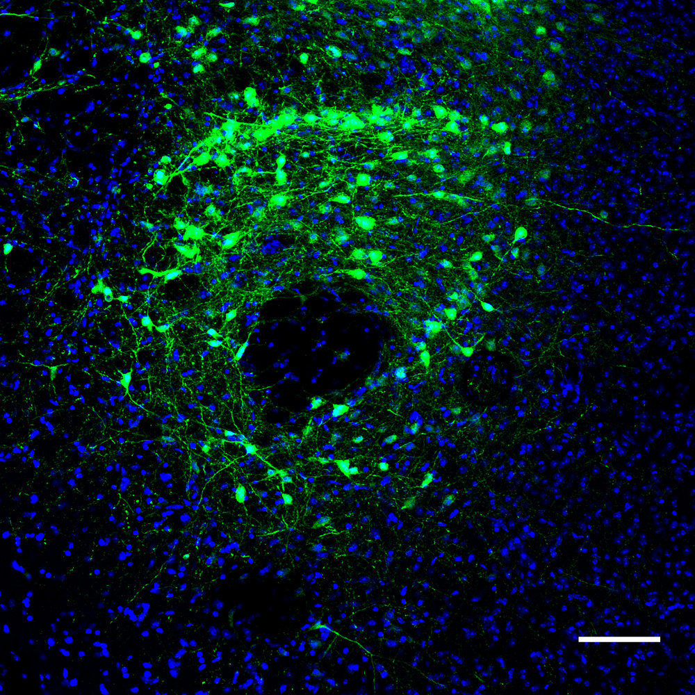 GCaMP6s expression in GABAergic neurons of the LH