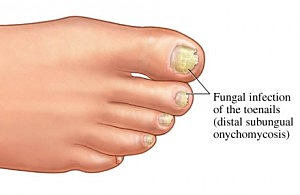 toenail fungus ugly nail  treatment  florida clearwater tampa st petersburgh town n country