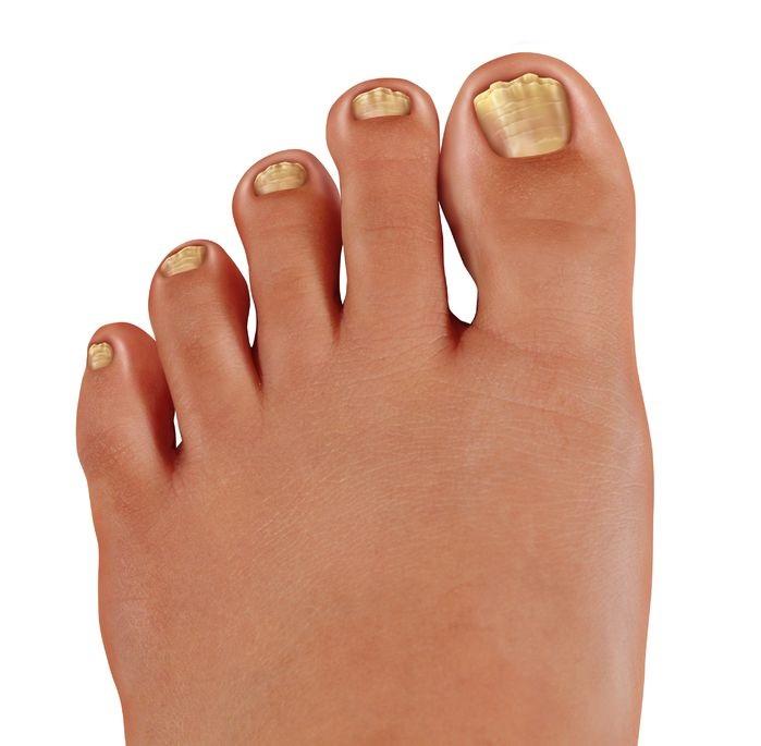 nail polish for fungus