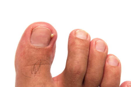 Ingrown Toenails Can Be Hard To Treat Fit Feet For Life