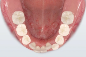 Problems Losing Teeth