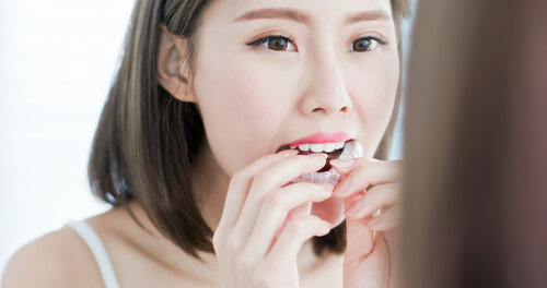 The Best Orthodontic Retainer for Your Top Teeth