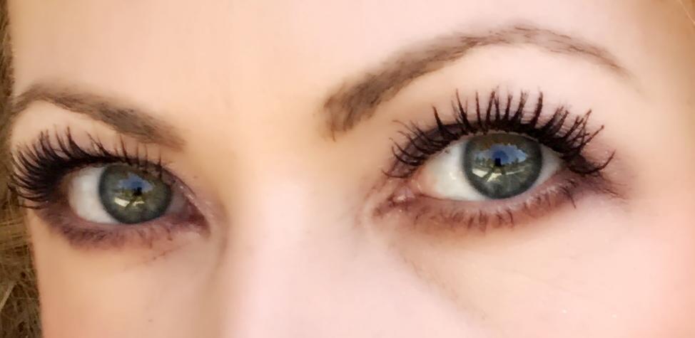 Both eyes done