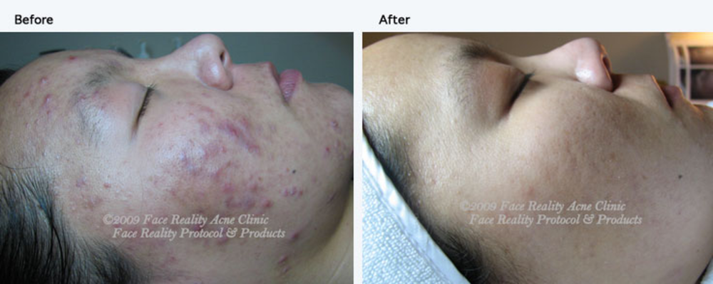 Acne Treatments Before and After Photo Using the Face Reality System