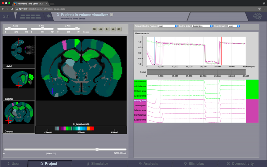 - Figure 2 An example for application of TVB: simulated epileptic seizure in the mouse brain.Image imported from https://www.thevirtualbrain.org/tvb/zwei/brainsimulator-screens