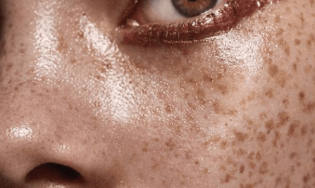 How To Take Charge Of Your Skin Problems For Good