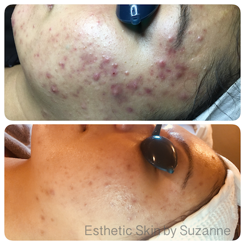 A happy client with a reduction in acne lesions and redness.