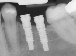 Copeland Family Dental provides  implant care.