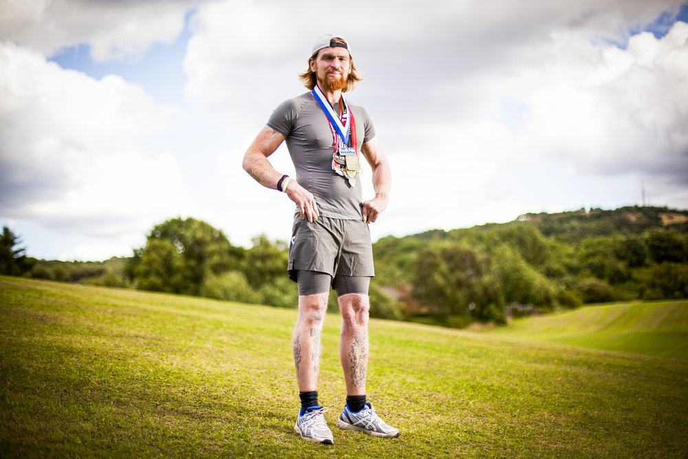 Karl Hinett, who was just 18 in 2005 when he was severely burnt following an attack while serving for the British Army in Iraq. Since leaving hospital in 2010, he has now completed over 150 marathons around the world for charity.