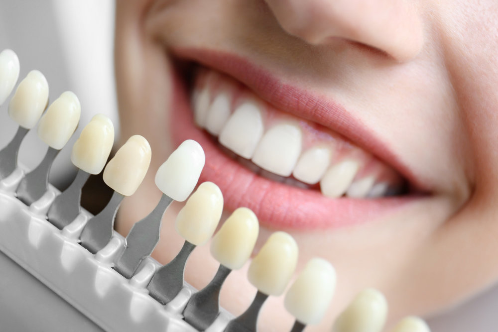Lumin Dentistry. Healdsburg, California. Sonoma County. Dr. Ian van Zyl.