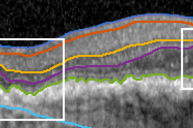 Ready for MICCAI! [May'17] - RetinAI+UniBern's collaboration on Optical Coherence Tomography (OCT) has outcome in a publication in the prestigious conference MICCAI'2017. Meet the RetinAI team in Quebec this September and have some discussions about Machine Learning in Ophthalmology.