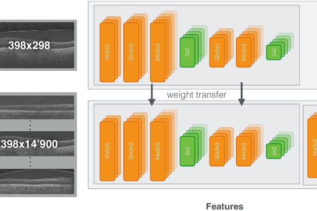 RETINET : Automatic AMD identification in OCT volumetric data [Oct'16] - Our new approach for achieving human level performance in the evaluation of AMD in OCT scans using convolutional neural network (CNNs) is out!