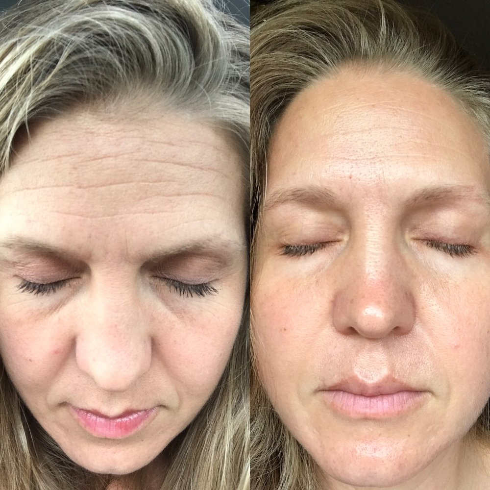 Left: April 11, 2017. No routine, except for R+F's Lash Boost, which is why I took the awkward-angle-of-a-picture. Light makeup. Right: July 8th, 2017. I'd been using Caffeine since the end of May. No makeup.  Forgive the different angles, but I hope you can see a bit of the difference I see.