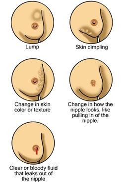 Breast changes.jpg