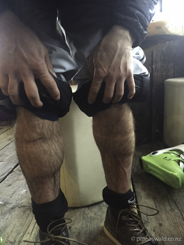 This how my leg with the torn calf muscle looked after each day skiing – tad swollen. Photo: Sophie Stevens