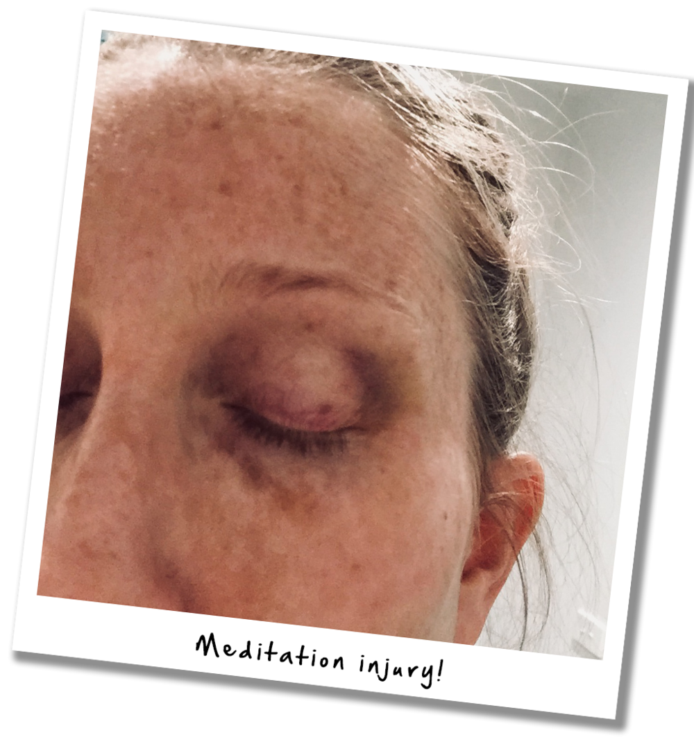 The result of trying meditation with a toddler - a book thrown in the face and a black eye!