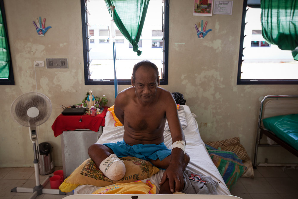 Former ambulance driver Ueatu Teaoti, a diabetic, sits in hospital having recently had his right (and driving) foot amputated above the ankle. One in four i-Kiribati has diagnosed diabetes, with many more living undiagnosed, making effective management very difficult.