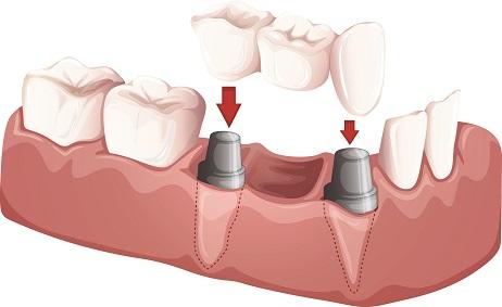 Breakdown of Partial Dental Implant in Green Hills Dentist